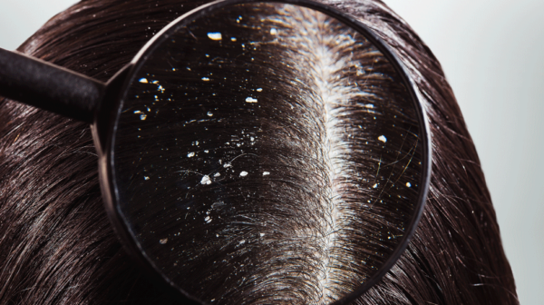 dandruff and homeopathy