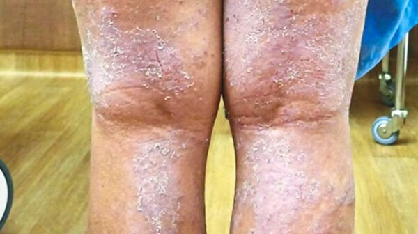 A patient with severe atopic dermatitis, also known as eczema.